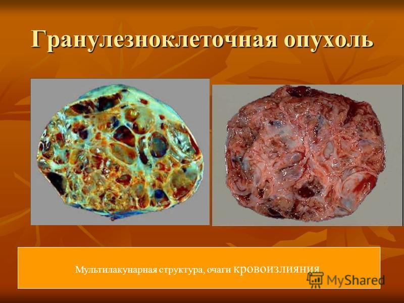 Гранулезноклеточная опухоль Мультилакунарная структура, очаги кровоизлияния.