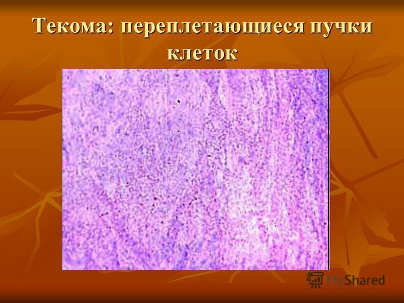 Текома: переплетающиеся пучки клеток