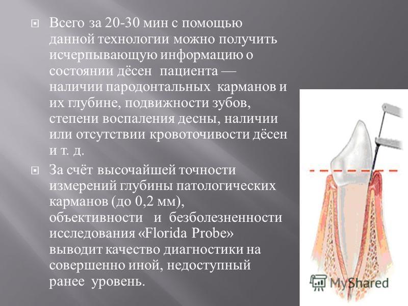 Всего за 20-30 мин с помощью данной технологии можно получить исчерпывающую информацию о состоянии дёсен пациента наличии пародонтальных карманов и их глубине, подвижности зубов, степени воспаления десны, наличии или отсутствии кровоточивости дёсен и