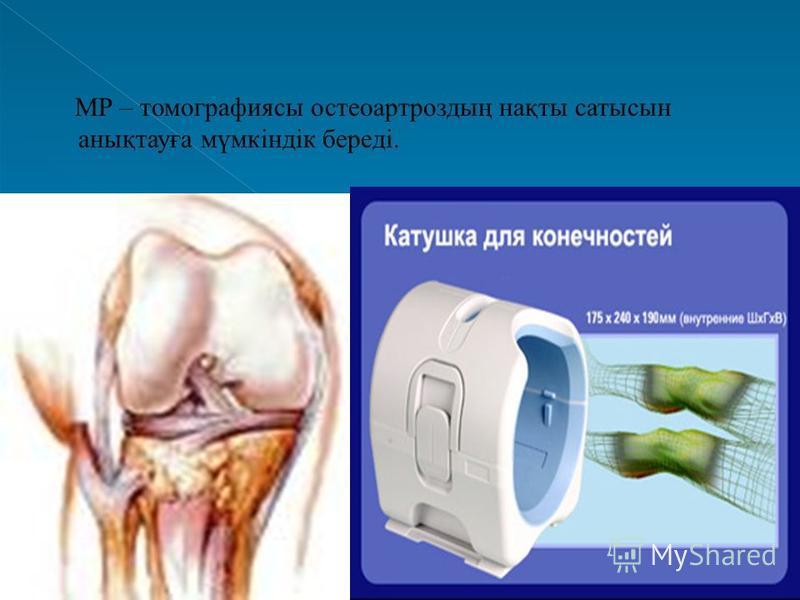 МР – томографиясы остеоартроздың нақты сатысын анықтауға мүмкіндік береді.