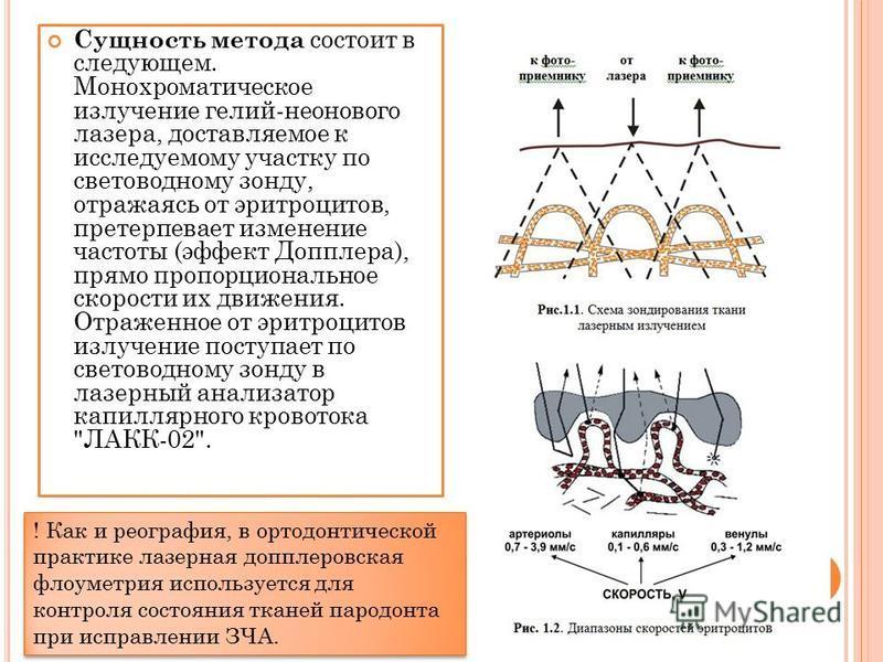 Сущность метода состоит в следующем. Монохроматическое излучение гелий-неонового лазера, доставляемое к исследуемому участку по светов одному зонду, отражаясь от эритроцитов, претерпевает изменение частоты (эффект Допплера), прямо пропорциональное ск