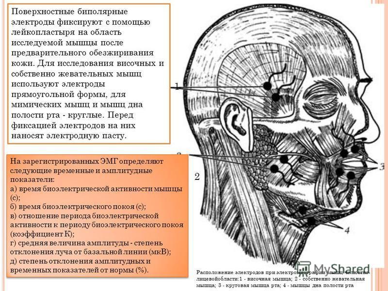 Поверхностные биполярные электроды фиксируют с помощью лейкопластыря на область исследуемой мышцы после предварительного обезжиривания кожи. Для исследования височных и собственно жевательных мышц используют электроды прямоугольной формы, для мимичес