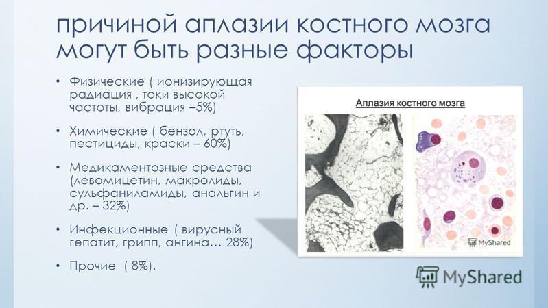 причиной аплазии костного мозга могут быть разные факторы Физические ( ионизирующая радиация, токи высокой частоты, вибрация –5%) Химические ( бензол, ртуть, пестициды, краски – 60%) Медикаментозные средства (левомицетин, макролиды, сульфаниламиды, а