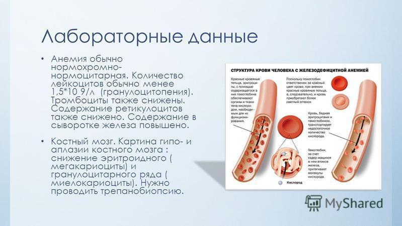 Лабораторные данные Анемия обычно нормохромной- нормоцитарная. Количество лейкоцитов обычно менее 1,5*10 9/л (гранулоцитопения). Тромбоциты также снижены. Содержание ретикулоцитов также снижено. Содержание в сыворотке железа повышено. Костный мозг. К
