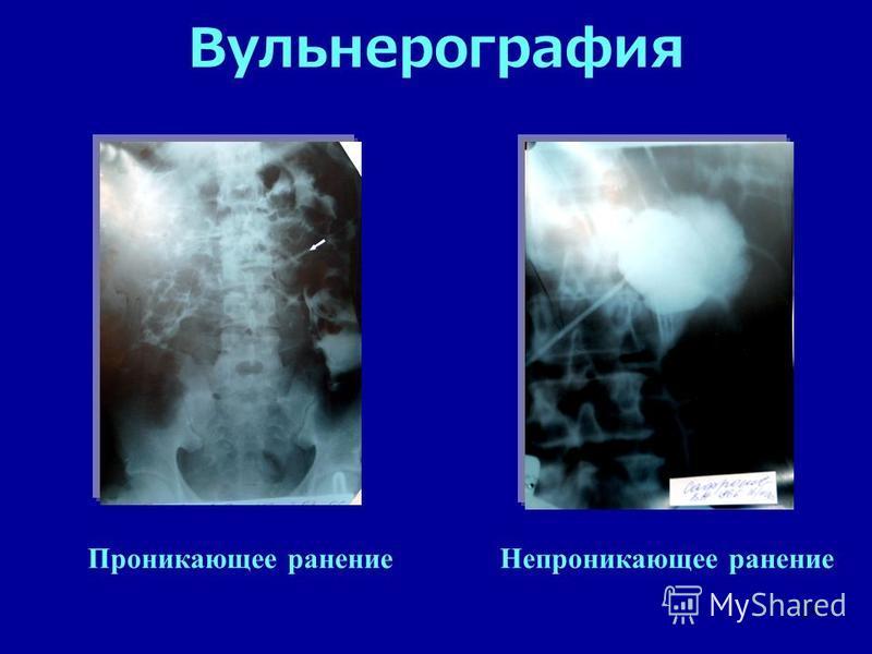 24 Вульнерография Проникающее ранение Непроникающее ранение