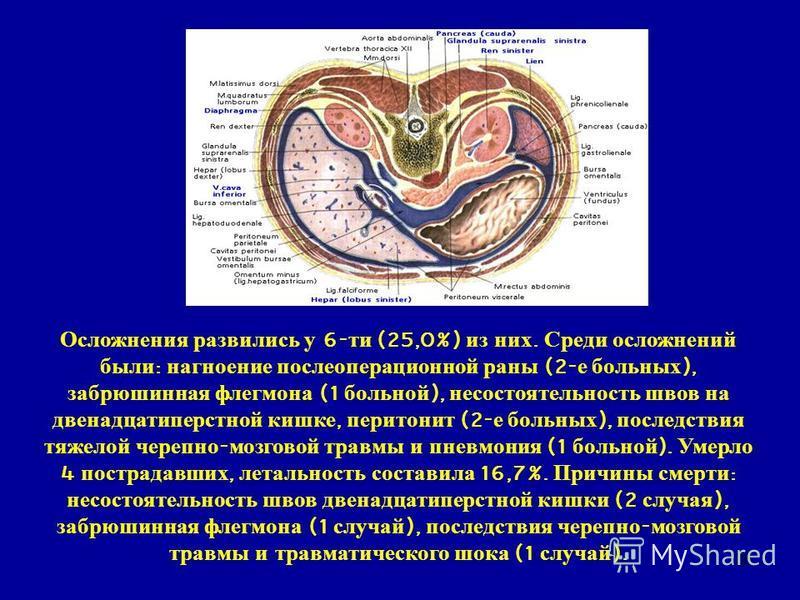 36 Осложнения развились у 6- ти (25,0%) из них. Среди осложнений были : нагноение послеоперационной раны (2- е больных ), забрюшинная флегмона (1 больной ), несостоятельность швов на двенадцатиперстной кишке, перитонит (2- е больных ), последствия тя