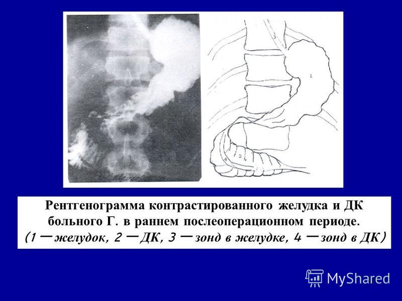 41 Рентгенограмма контрастированного желудка и ДК больного Г. в раннем послеоперационном периоде. (1 желудок, 2 ДК, 3 зонд в желудке, 4 зонд в ДК )