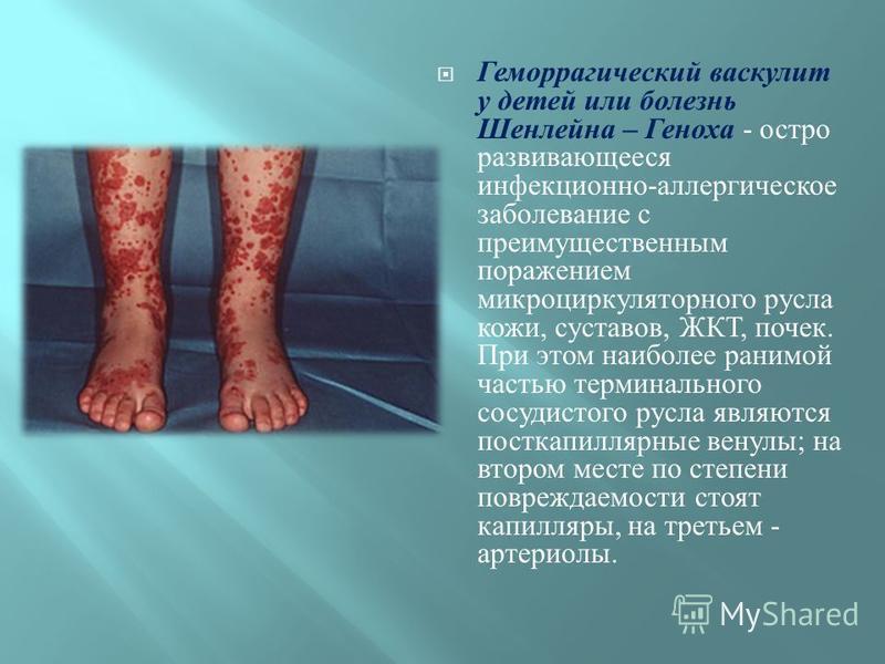 Геморрагический васкулит у детей или болезнь Шенлейна – Геноха - остро развивающееся инфекционно - аллергическое заболевание с преимущественным поражением микроциркуляторного русла кожи, суставов, ЖКТ, почек. При этом наиболее ранимой частью терминал
