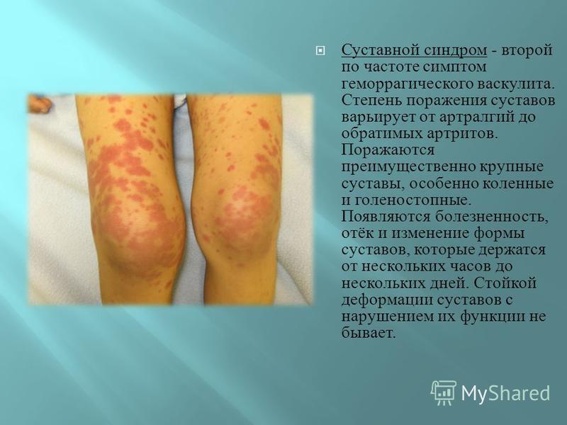 Суставной синдром - второй по частоте симптом геморрагического васкулита. Степень поражения суставов варьирует от артралгий до обратимых артритов. Поражаются преимущественно крупные суставы, особенно коленные и голеностопные. Появляются болезненность