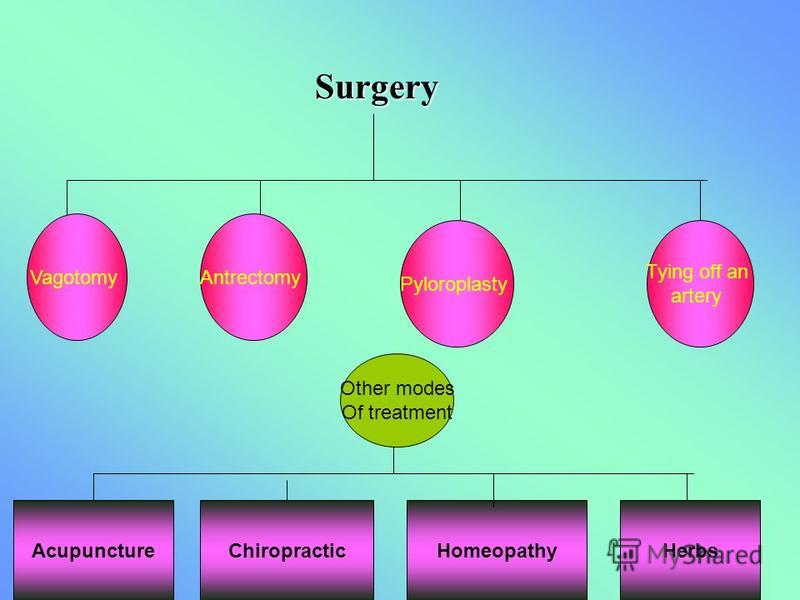Surgery VagotomyAntrectomy Pyloroplasty Tying off an artery AcupunctureChiropracticHomeopathyHerbs Other modes Of treatment