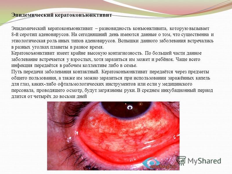 Эпидемический кератоконъюнктивит Эпидемический кератоконъюнктивит – разновидность конъюнктивита, которую вызывает 8-й серотип аденовирусов. На сегодняшний день имеются данные о том, что существенна и этиологическая роль иных типов аденовирусов. Вспыш