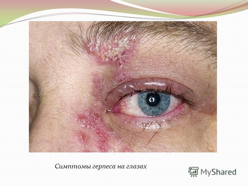 Симптомы герпеса на глазах
