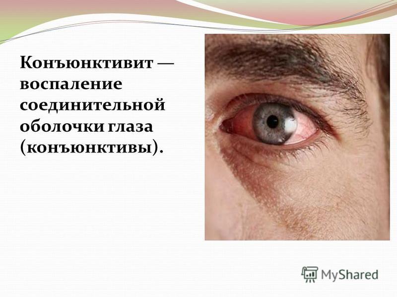 Конъюнктивит воспаление соединительной оболочки глаза (конъюнктивы).