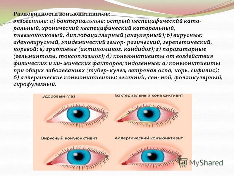 Разновидности конъюнктивитов: экзогенные: а) бактериальные: острый неспецифический катаральный, хронический неспецифический катаральный, пневмококковый, диплобациллярный (ангулярный); б) вирусные: аденовирусный, эпидемический геморрагический, герпети