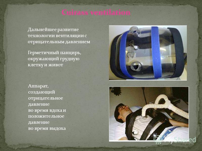 Дальнейшее развитие технологии вентиляции с отрицательным давлением Герметичный панцирь, окружающий грудную клетку и живот Cuirass ventilation Аппарат, создающий отрицательное давление во время вдоха и положительное давление во время выдоха