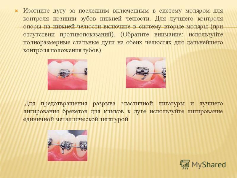 Изогните дугу за последним включенным в систему моляром для контроля позиции зубов нижней челюсти. Для лучшего контроля опоры на нижней челюсти включите в систему вторые моляры (при отсутствии противопоказаний). (Обратите внимание: используйте полнор