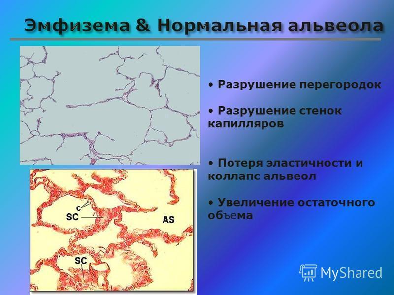 Разрушение перегородок Разрушение стенок капилляров Потеря эластычносты и коллапс альвеол Увеличение остаточного объема
