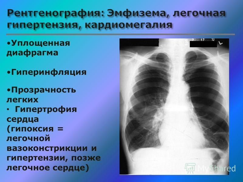 Уплощенная диафрагма Гиперинфляция Прозрачность легких Гипертрофия сердца (гипоксия = легочной вазоконстрикции и гипертензии, позже легочное сердце)