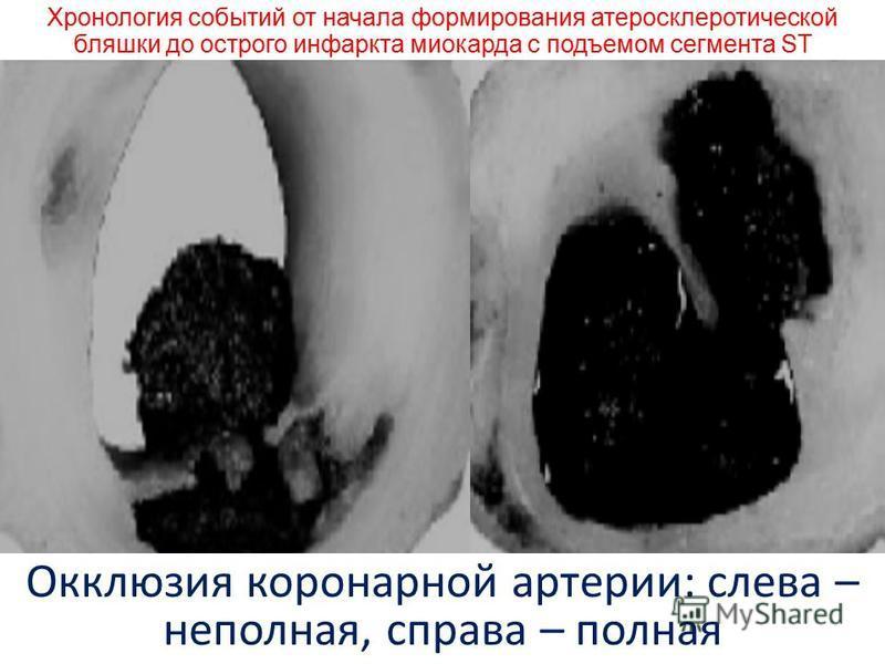 ПАТОГЕНЕЗ ИНФАРКТ МИОКАРДА С ЭЛЕВАЦИЕЙ СЕГМЕНТА ST связан с образованием тромбоцитарнойго тромба на поверхности лопнувшей или эрозированной атеросклеротической бляшки выраженность ишемии миокарда зависит от степени сужения или окклюзии коронарной арт