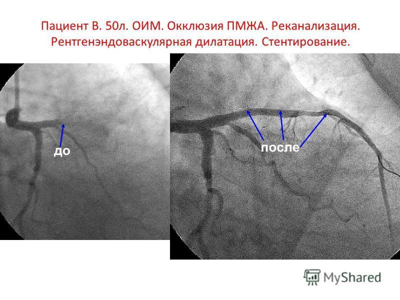 Пациент В. 50 л. ОИМ. Окклюзия ПМЖА. Реканализация. Рентгенэндоваскулярная дилатация. Стентирование. до после