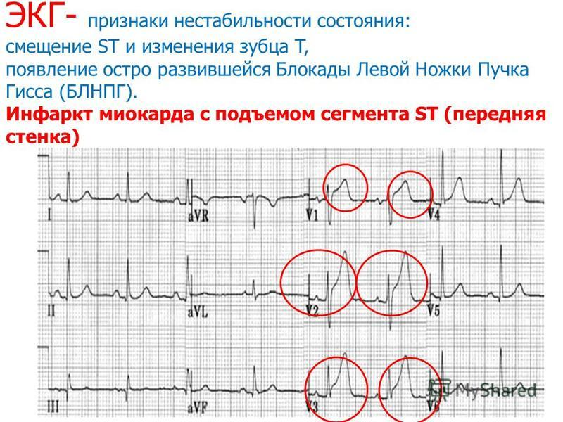 ЭКГ- признаки нестабильности состояния: смещение ST и изменения зубца T, появление остро развившейся Блокады Левой Ножки Пучка Гисса (БЛНПГ). Инфаркт миокарда с подъемом сегмента ST (передняя стенка)