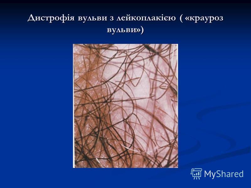 Дистрофія вульви з лейкоплакією ( «крауроз вульви»)