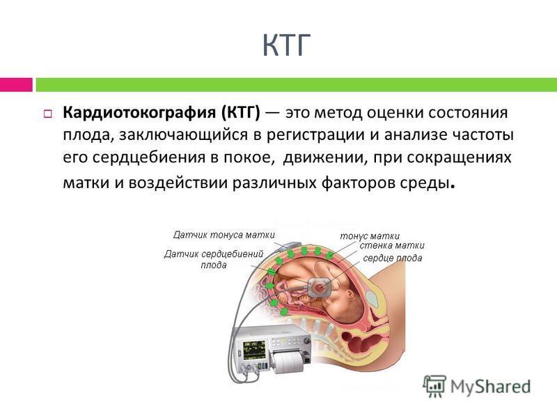 КТГ Кардиотокография ( КТГ ) это метод оценки состояния плода, заключающийся в регистрации и анализе частоты его сердцебиения в покое, движении, при сокращениях матки и воздействии различных факторов среды.