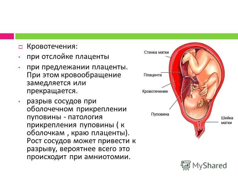 Кровотечения : при отслойке плаценты при предлежании плаценты. При этом кровообращение замедляется или прекращается. разрыв сосудов при оболочечном прикреплении пуповины - патология прикрепления пуповины ( к оболочкам, краю плаценты ). Рост сосудов м
