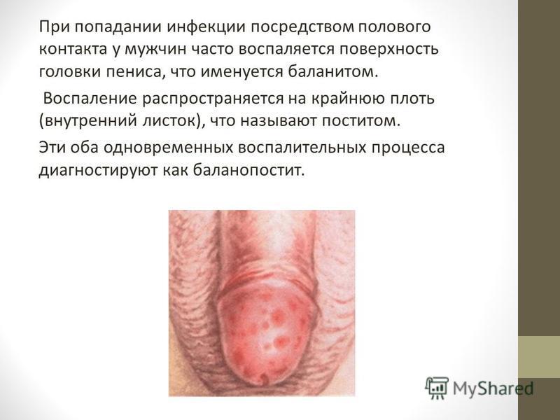 При попадании инфекции посредством полового контакта у мужчин часто воспаляется поверхность головки пениса, что именуется баланитом. Воспаление распространяется на крайнюю плоть (внутренний листок), что называют поститом. Эти оба одновременных воспал