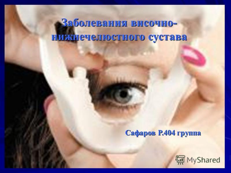 Заболевания височно- нижнечелюстного сустава Сафаров Р.404 группа