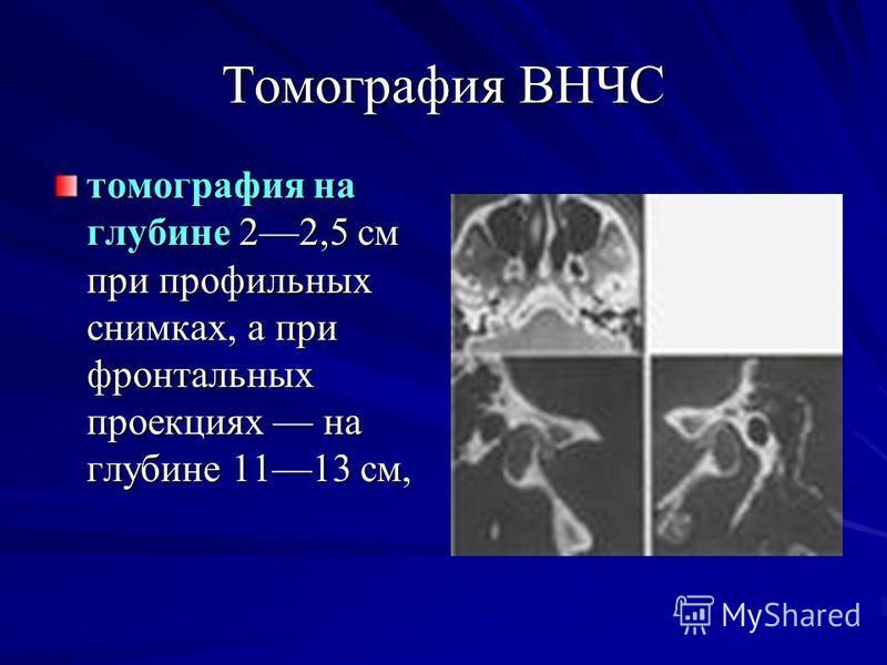 Томография ВНЧС томография на глубине 22,5 см при профильных снимках, а при фронтальных проекциях на глубине 1113 см,