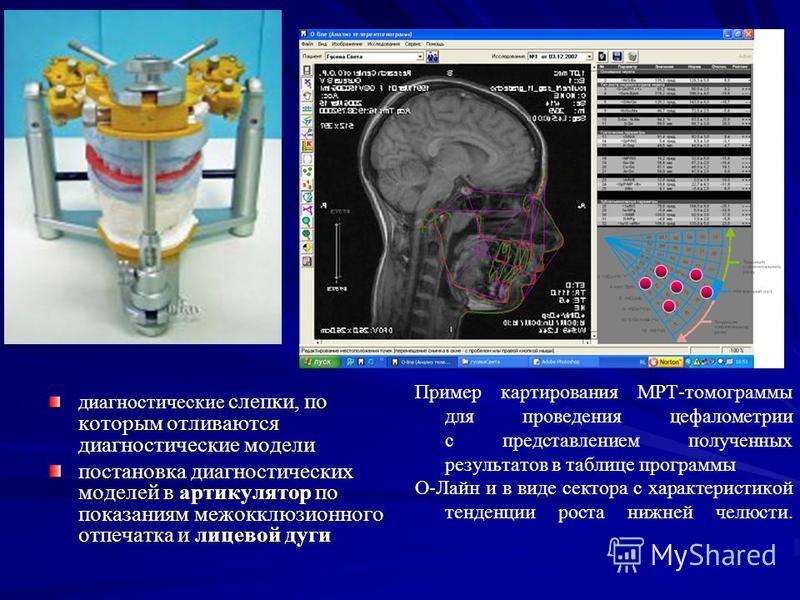 диагностические слепки, по которым отливаются диагностические модели постановка диагностических моделей в артикулятор по показаниям межокклюзионного отпечатка и лицевой дуги Пример картирования МРТ-томограммы для проведения цефалометрии с представлен