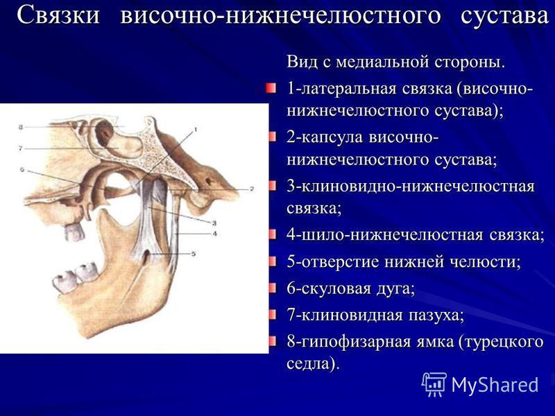Связки височно-нижнечелюстного сустава Вид с медиальной стороны. 1-латеральная связка (височно- нижнечелюстного сустава); 2-капсула височно- нижнечелюстного сустава; 3-клиновидно-нижнечелюстная связка; 4-шило-нижнечелюстная связка; 5-отверстие нижней