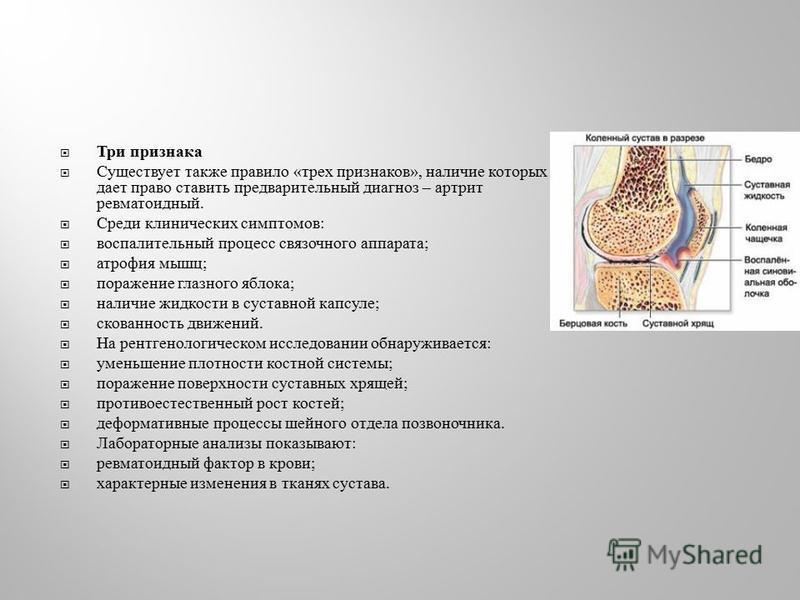 Три признака Существует также правило « трех признаков », наличие которых дает право ставить предварительный диагноз – артрит ревматоидный. Среди клинических симптомов : воспалительный процесс связочного аппарата ; атрофия мышц ; поражение глазного я