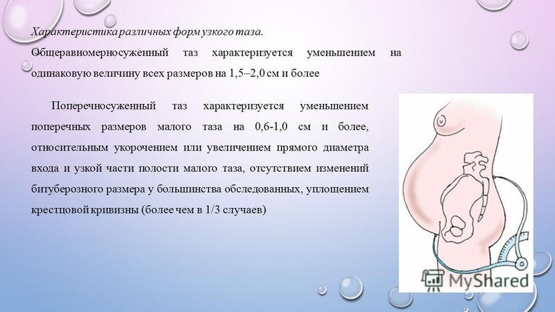 Характеристика различных форм узкого таза. Общеравномерносуженный таз характеризуется уменьшением на одинаковую величину всех размеров на 1,5–2,0 см и более Поперечносуженный таз характеризуется уменьшением поперечных размеров малого таза на 0,6-1,0