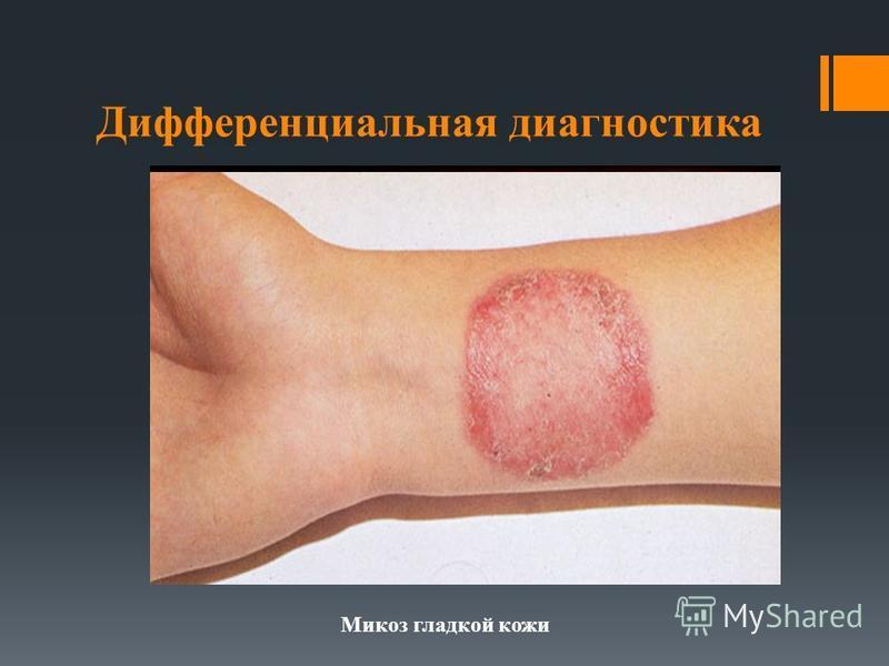 Дифференциальная диагностика Микоз гладкой кожи
