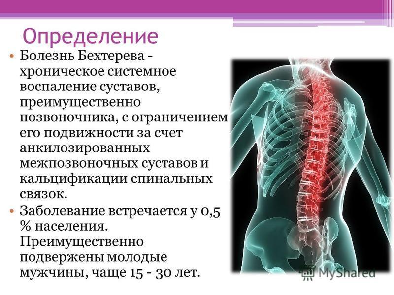 Определение Болезнь Бехтерева - хроническое системное воспаление суставов, преимущественно позвоночника, с ограничением его подвижности за счет анкилозированных межпозвоночных суставов и кальцификации спинальных связок. Заболевание встречается у 0,5
