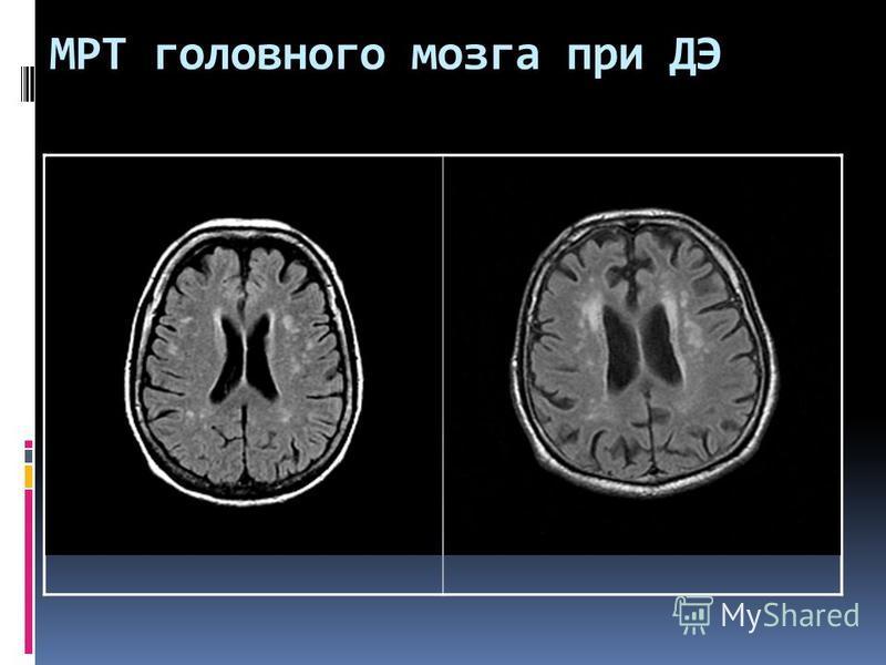 МРТ головного мозга при ДЭ
