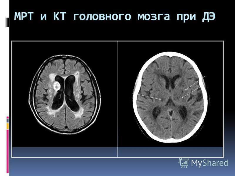 МРТ и КТ головного мозга при ДЭ