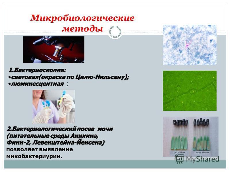 Микробиологические методы 1.Бактериоскопия: световая(окраска по Цилю-Нильсену);световая(окраска по Цилю-Нильсену); люминесцентная ; 2. Бактериологический посев мочи (питательные среды Аникина, Финн-2, Левенштейна-Йенсена) позволяет выявление микобакт