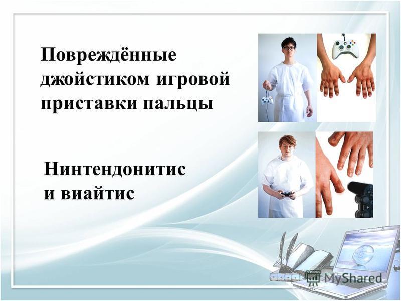 Повреждённые джойстиком игровой приставки пальцы Нинтендонитис и виайтис