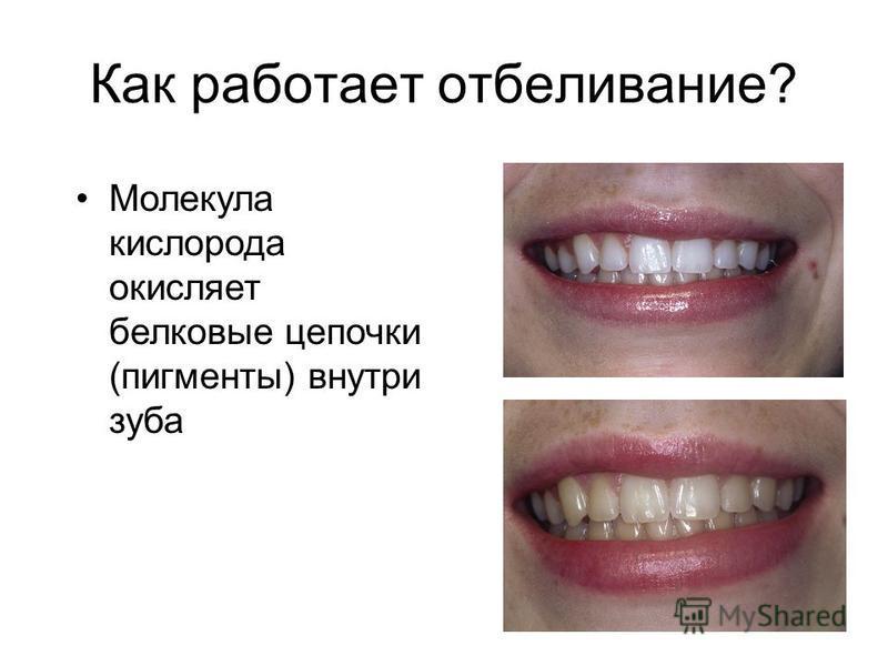 Как работает отбеливание? Молекула кислорода окисляет белковые цепочки (пигменты) внутри зуба
