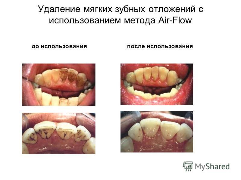 до использования после использования Удаление мягких зубных отложений с использованием метода Air-Flow