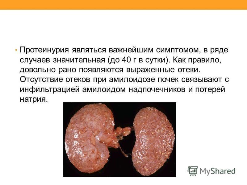Протеинурия являться важнейшим симптомом, в ряде случаев значительная (до 40 г в сутки). Как правило, довольно рано появляются выраженные отеки. Отсутствие отеков при амилоидозе почек связывают с инфильтрацией амилоидом надпочечников и потерей натрия