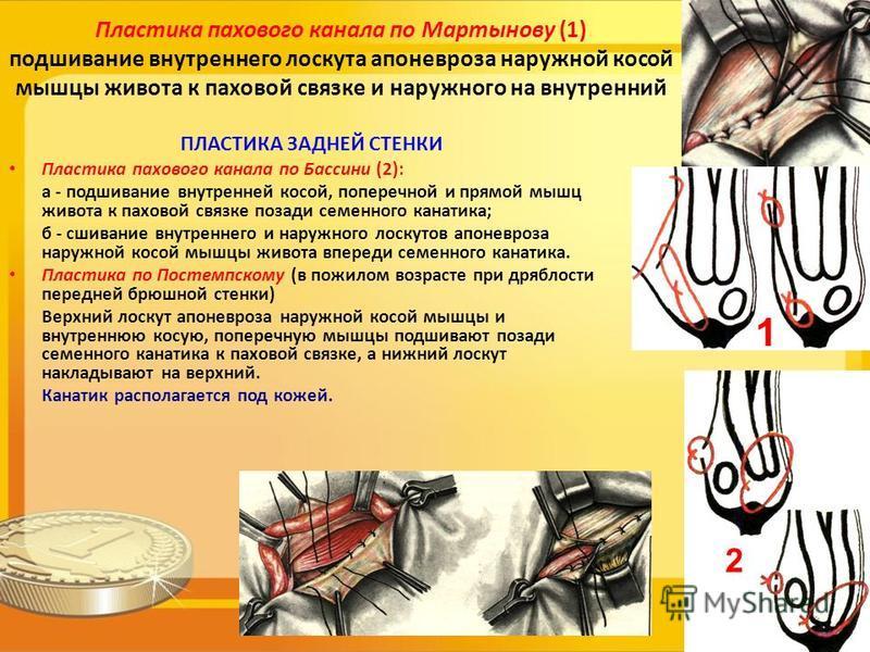 Пластика пахового канала по Мартынову (1) подшивание внутреннего лоскута апоневроза наружной косой мышцы живота к паховой связке и наружного на внутренний ПЛАСТИКА ЗАДНЕЙ СТЕНКИ Пластика пахового канала по Бассини (2): а - подшивание внутренней косой