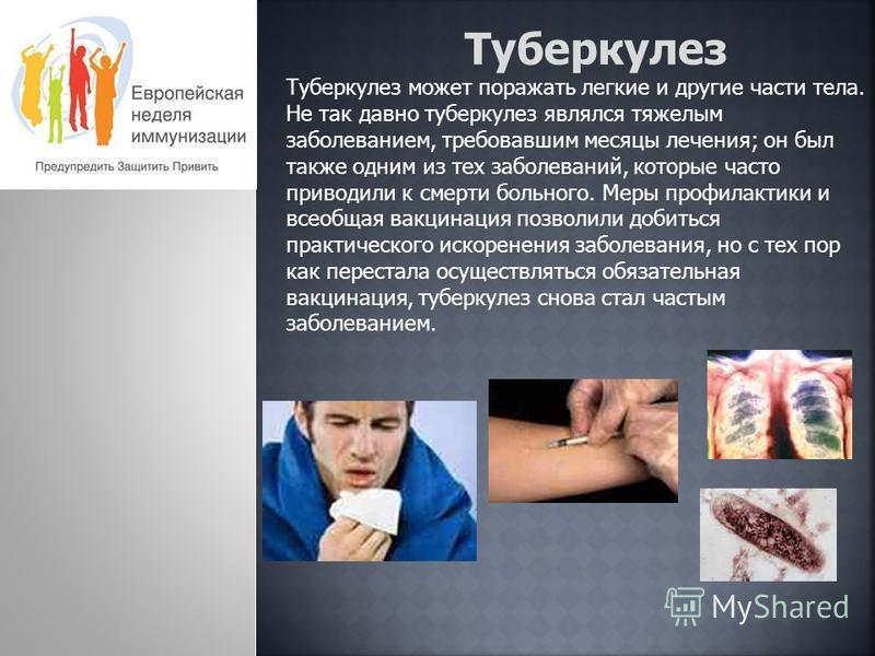 Туберкулез Туберкулез может поражать легкие и другие части тела. Не так давно туберкулез являлся тяжелым заболеванием, требовавшим месяцы лечения; он был также одним из тех заболеваний, которые часто приводили к смерти больного. Меры профилактики и в