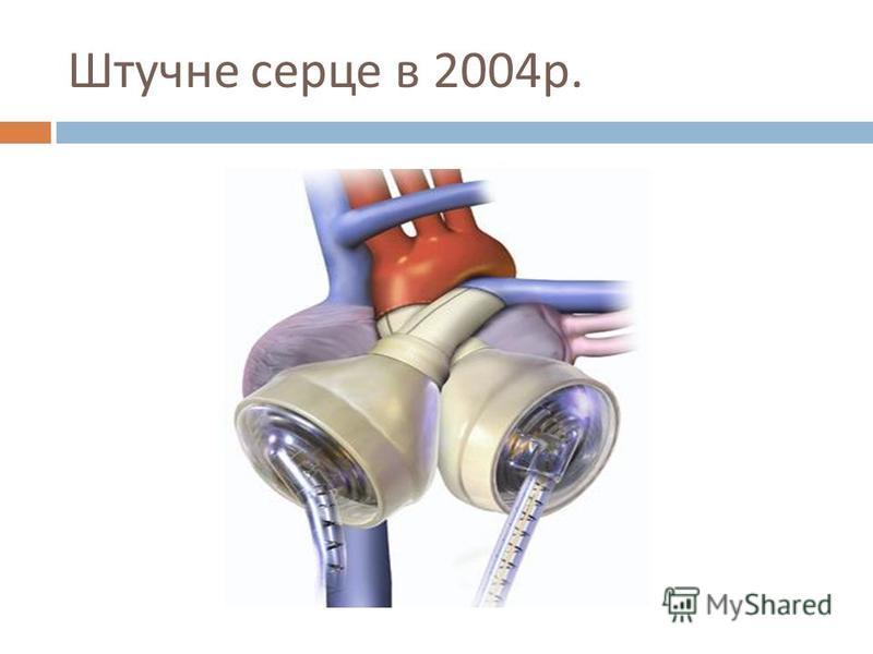 Штучне серце в 2004 р.