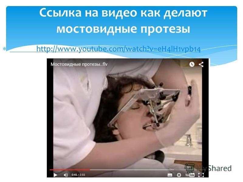 http://www.youtube.com/watch?v=eH4lH1vpb14 http://www.youtube.com/watch?v=eH4lH1vpb14 Ссылка на видео как делают мостовидные протезы