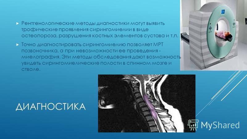 ДИАГНОСТИКА Рентгенологические методы диагностики могут выявить трофические проявления сирингомиелии в виде остеопороза, разрушения костных элементов сустава и т.п. Точно диагностировать сирингомиелию позволяет МРТ позвоночника, а при невозможности е