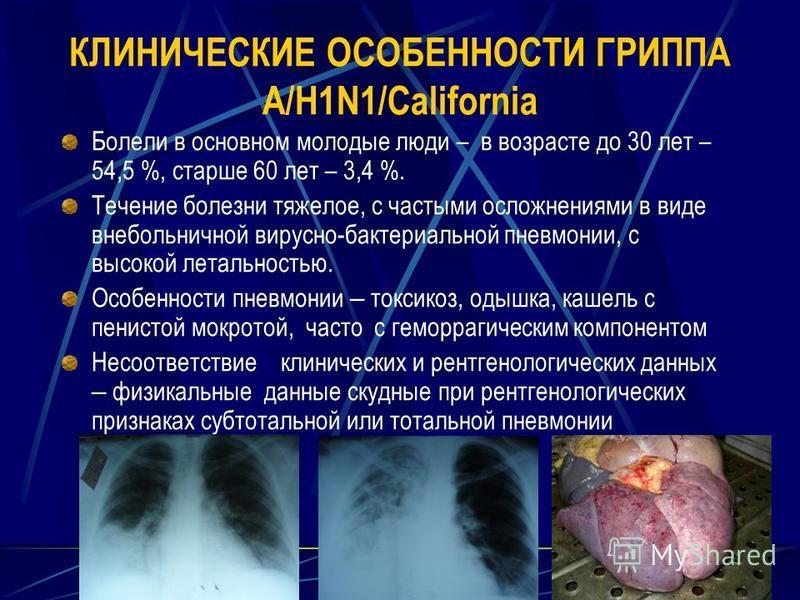 КЛИНИЧЕСКИЕ ОСОБЕННОСТИ ГРИППА A/H1N1/California Болели в основном молодые люди – в возрасте до 30 лет – 54,5 %, старше 60 лет – 3,4 %. Течение болезни тяжелое, с частыми осложнениями в виде внебольничной вирусно-бактериальной пневмонии, с высокой ле